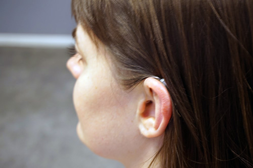 Utprovning av hörapparat
