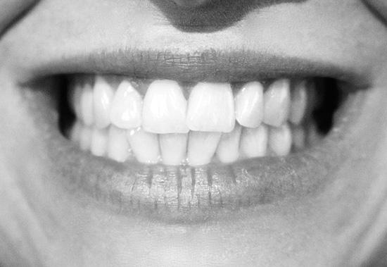 tandreglering-tänder