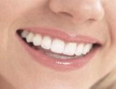 Blek dina tänder hos en vårdgivare på Vården.se
