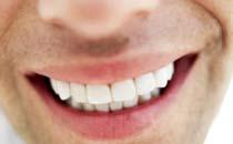 tandreglering/tandställning