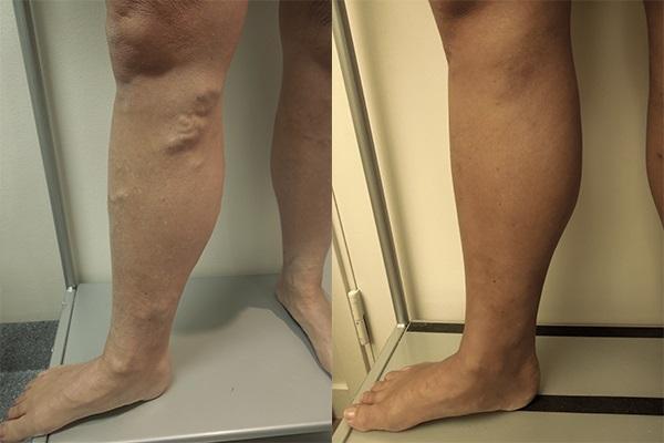Ben före och efter åderbråcksbehandling