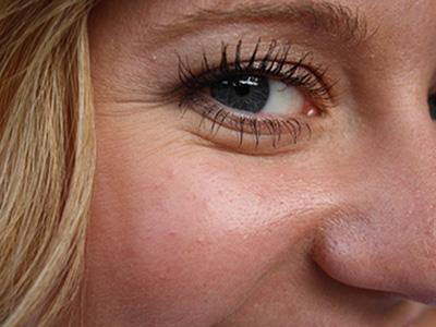 Kvinna-rynkor-öga