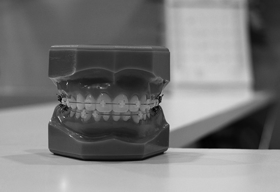 tandställning-modell